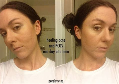5 supplements that healed my acne 1000 images about healing the gut skin digestion