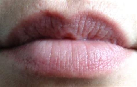 yellow coloration of the skin guidelines to your health how to read your lip colors