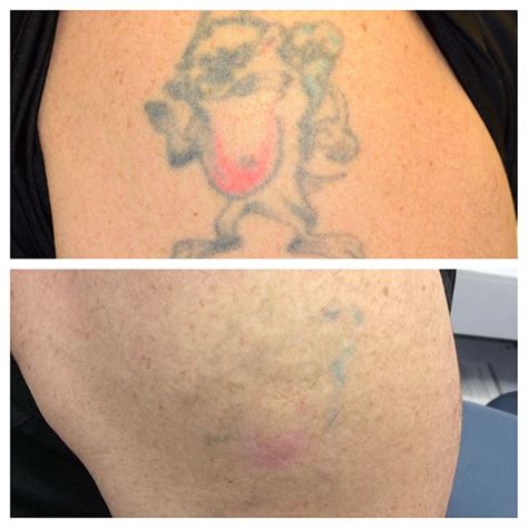 tattoo removal in nc laser services before and after photos raleigh nc
