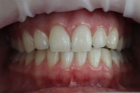 teeth whitening cosmetic dentistry floss dental boutique