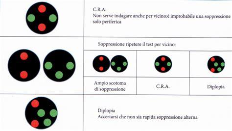 test di worth diplopia o visione doppia classificazione e cenni di