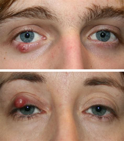 cyst on s eyelid eyelid cysts eyelid surgery centre eyelid midface specialist surgeon cosmetic