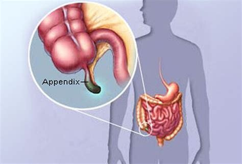 appendix diagram early appendicitis symptoms signs causes test