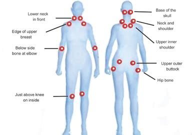 fibromyalgia pressure points diagram seeking chiropractic treatment take a look at these tips