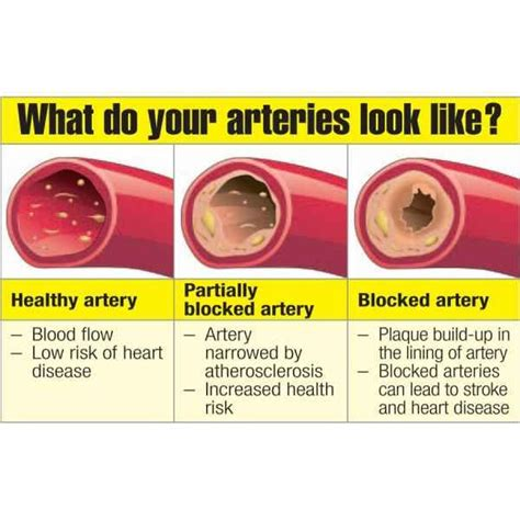 Artery Detox by Top 6 Artery Cleansing Foods Spirulina Pomegranates And