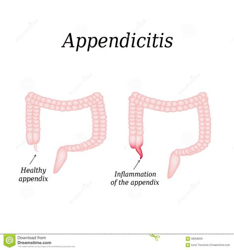 Avoid Appendix Surgery Detox by Appendix Cancer Treatment The One Step Home Care
