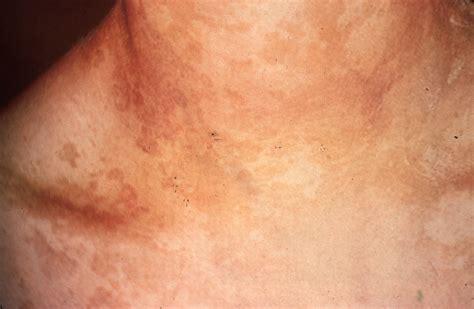 Obat Clotrimazole Ketoconazole Miconazole ketoconazole for tinea versicolor synthroid hair loss