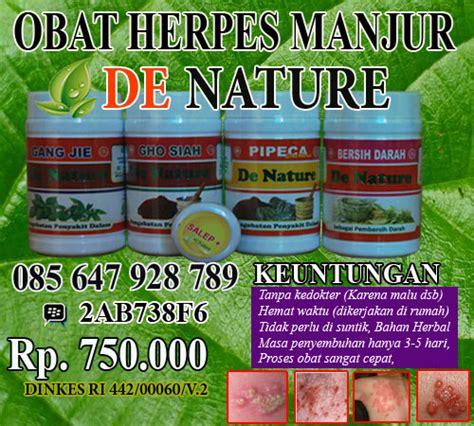 Obat Buat Herpes cara mengobati herpes pada ibu obat herpes uh