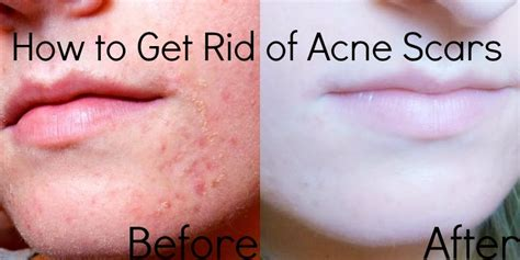 15 Top Foods To Get Rid Of Acne by How To Get Rid Of Spots On The Best 2015
