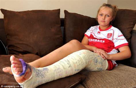 broken leg 9 told to walk broken leg by doctor who didn t notice fracture