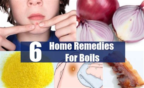 home remedy for boils 6 boils home remedies treatments and cure usa