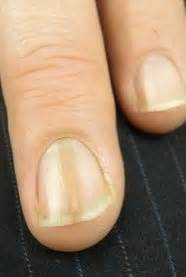 nail bed melanoma next time you polish your nails please do this first it