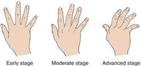arthritis definition of arthritis by medical dictionary rheumatiod arthritis definition of rheumatiod arthritis