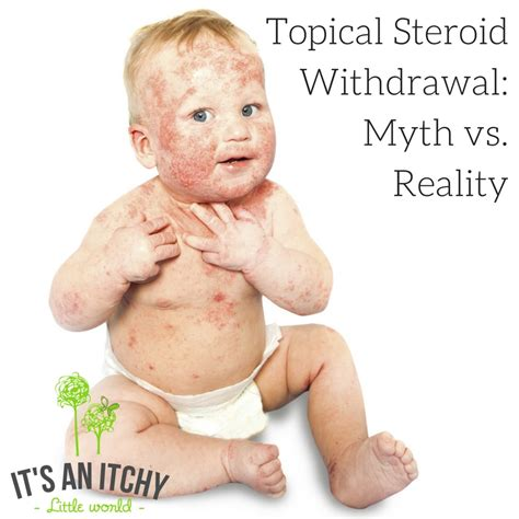 Hydrocortisone Detox by Topical Steroid Withdrawal Myth Vs Reality