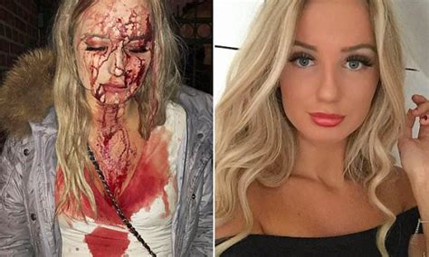 Swedish Teen Hit With Bottle For Rejecting Groping Man