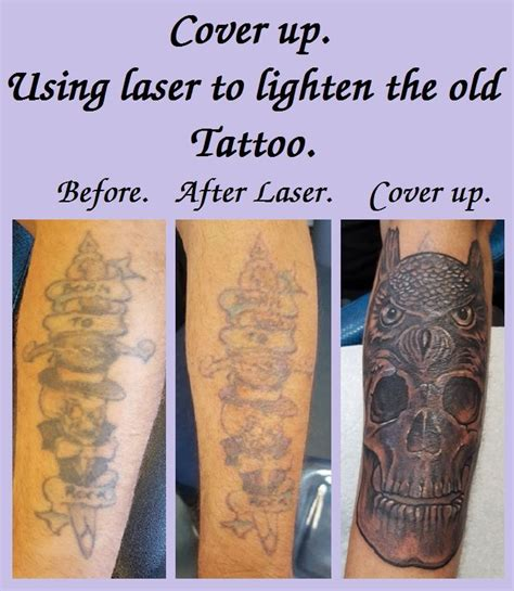sugarland tattoo removal 100 laser removal houston sugar