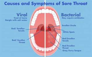 Symptoms causes and treatment of a sore throat at night