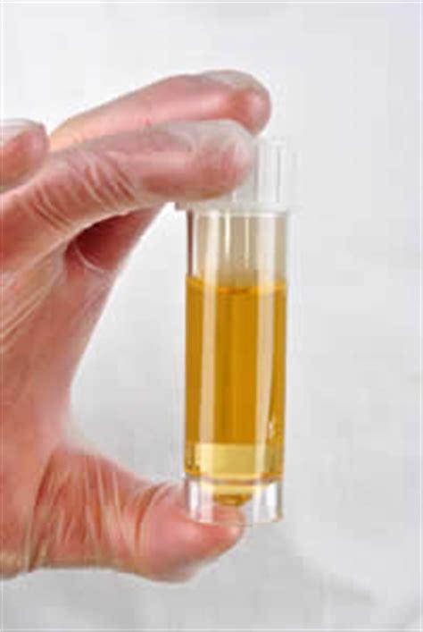Sedimenti Nelle Urine by Sangue Nella Pipi Urine Fare Urologo Andrologo