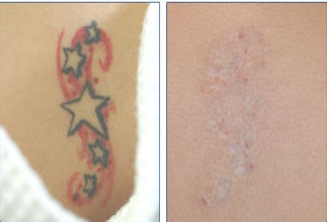 skin graft tattoo removal walking the line page 2