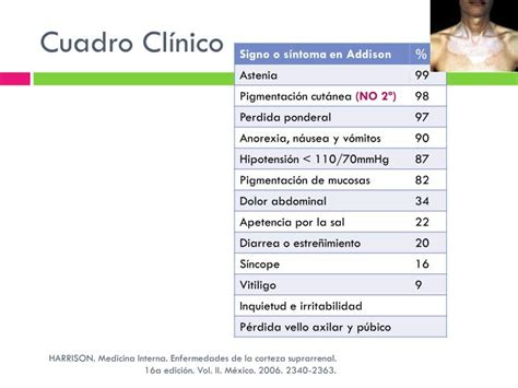 cuadro cl nico ppt suprarrenales powerpoint presentation id 3052271