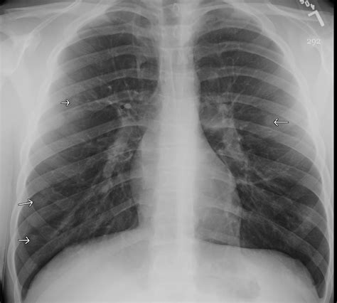 Multiplek Lung pulmonary nodules the clinical advisor