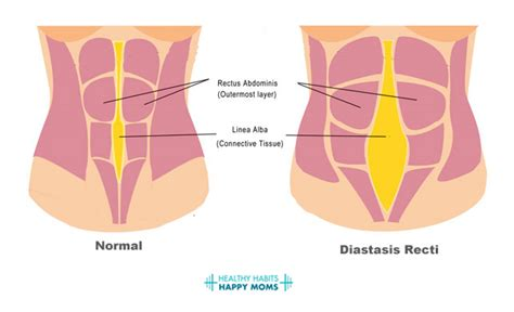 diastasis recti c section the postpartum mom s guide to diastasis recti moov
