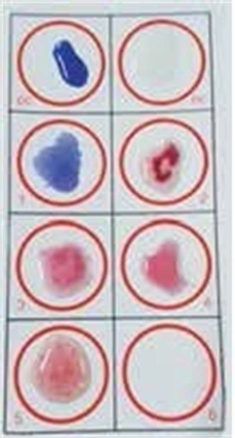widal wright test immunology teaching kit abo blood grouping with rh
