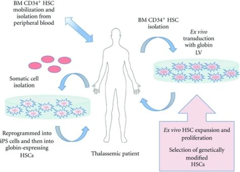 Increased Accessibility Can Lead To Schematic Representation Of Hsc Based Gene Therapy For Open I