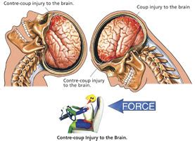 mood swings after head injury what is a traumatic brain injury neuropsych consulting