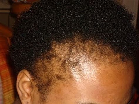 hair salons for black females with alopecia in chicago howto repair snatch edges youtube