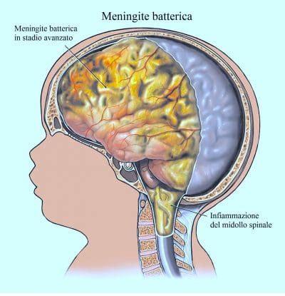dolore dietro testa dolore alla nuca destra o sinistra e rimedi