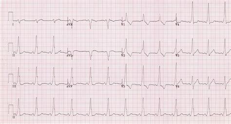 heart ecg pattern wolff parkinson white syndrome wpw syndrome