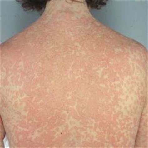 Itchy Bumps Detox by 17 Best Images About Home On Irritable