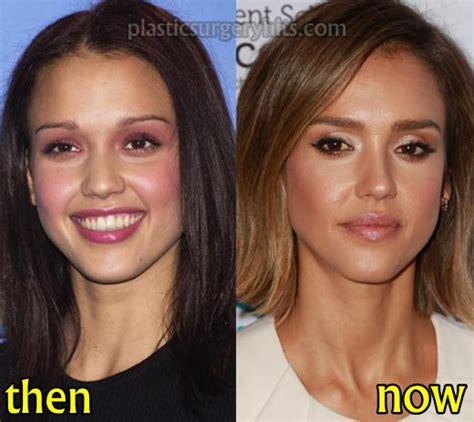 jessica parido face plastic surgery jessica alba plastic surgery before and after plastic