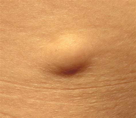 lipoma pictures image gallery lipoma