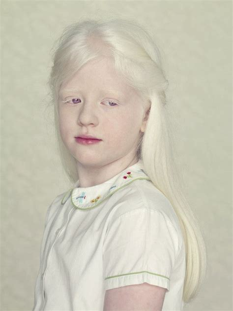 Albino Hair Feel | beautiful portraits of albinos by gustavo lacerda