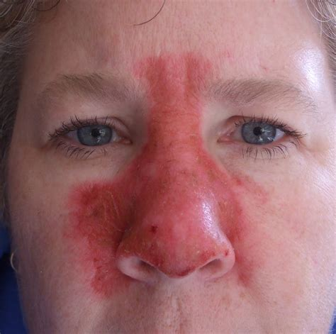 nose on skin cancer on nose treatment images