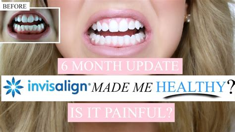 invisalign update  months pain teeth whitening