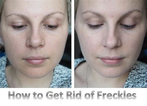 10 Ways To Get Rid Of Freckles by Best 25 How To Remove Freckles Ideas On