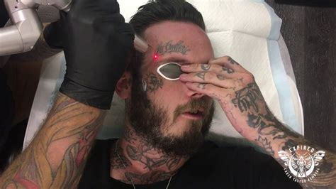 tattoo removal on face removal expired laser studio