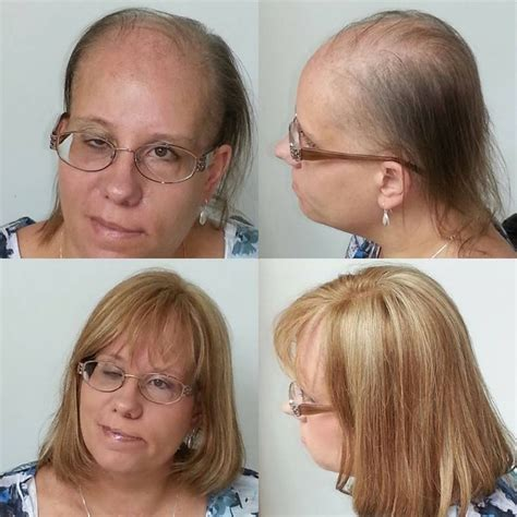 hair shops who work with thin balding hair in chicago 20 best images about stop hairloss on pinterest to be