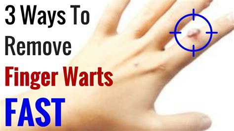 how to finger how to get rid of warts on fingers fast 3 natural wart