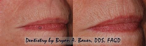 growth on lip small blue bump on lip bauer smiles
