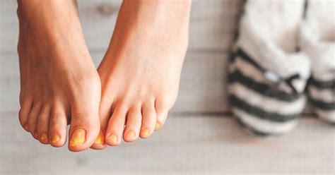 porque salen hongos en las u as comezon en los pies related keywords comezon en los pies