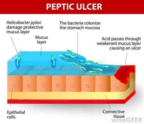 Ulcer Blood In Stool by What Are Some Causes Of Blood In The Stool Of Animals