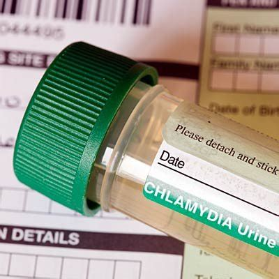 chlamydia test tests you need health