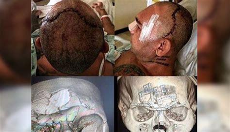 evangelista cyborg santos shows battle scars   fight muscle fitness