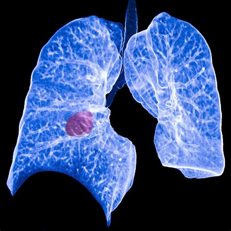 Cctv Lung Among All Cancers Lung Cancer Appears To Put Patients At Greatest Risk Eurekalert