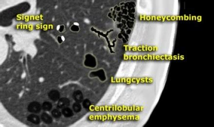 mosaic pattern radiology assistant the radiology assistant lung hrct basic interpretation