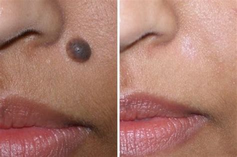 black mole on face www pixshark com images galleries